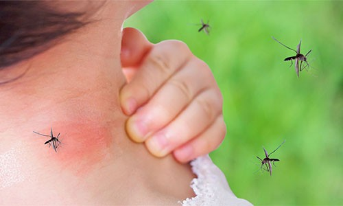 How To Make Mosquito Repellent At Home