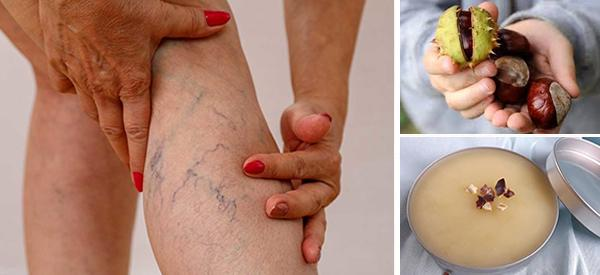 How To Treat Varicose Veins With Chestnuts