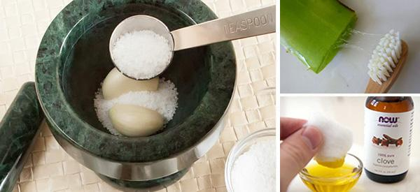 10 Natural Remedies for Toothaches